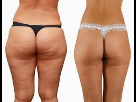 before and after Squats